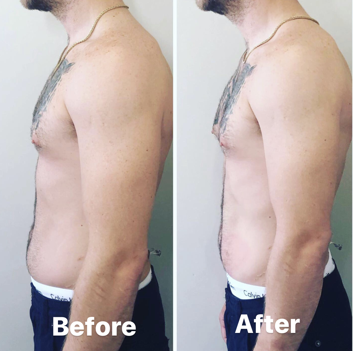 Cryotoning before and After